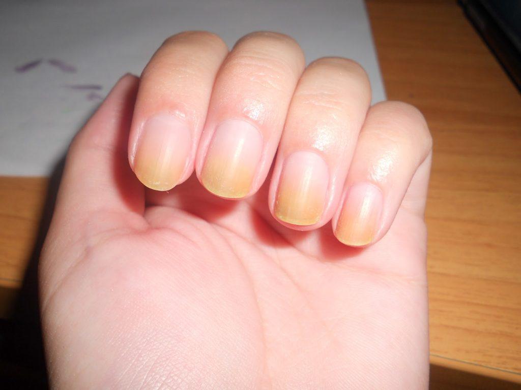 Красный плоский лишай ногтях