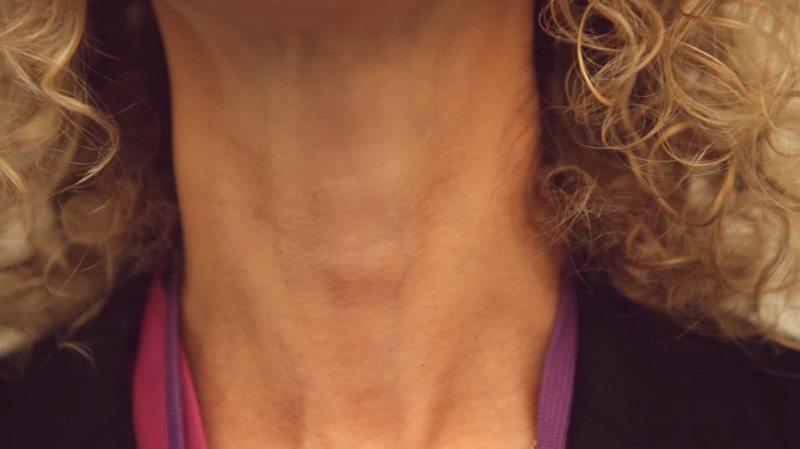Как определить проблемы со щитовидкой: тебе понадобится лишь вода и зеркало!