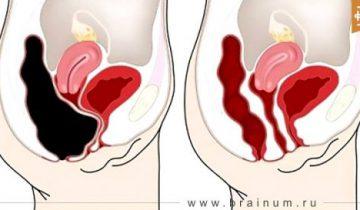 Как устранить килограммы токсинов из вашей толстой кишки