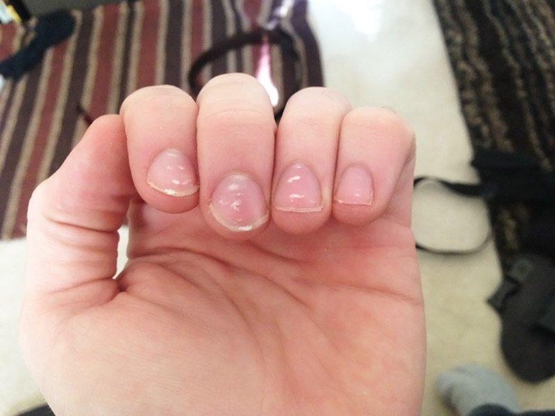 То, что она увидела на своих ногтях, спасло ей жизнь! Срочно проверь у себя!