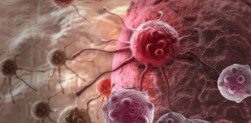 Как вылечить рак за несколько дней: невероятная методика доктора Колдуэлла