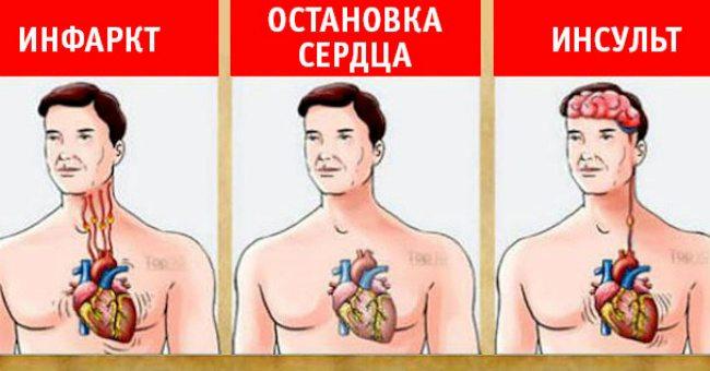 Важная информация: как распознать инсульт, инфаркт или остановку сердца! Очень ценная информация, которая может спасти здоровье ваших близких!