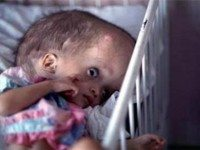 Почему рождаются больные дети? ЧТО СКРЫВАЮТ ОТ ДЕВУШЕК?
