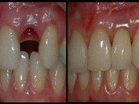 Вырастить новые зубы за 9 недель: процедура, которая возможна в любом возрасте!