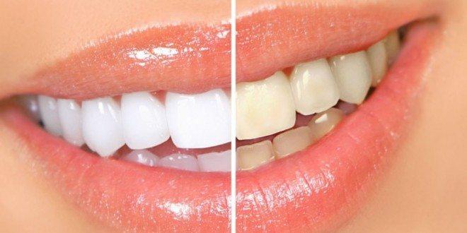 Ого, какой эффект! Отбеливать зубы в домашних условиях — легко! Народные способы, как избавиться от желтизны эмали.
