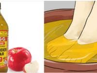Невероятные полезные свойства яблочного уксуса!