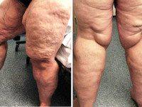 Эта женщина страдала ожирением. На то, что она пошла, решится не каждая!