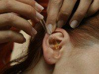 Как эффективно устранить ушную серу и избавиться от ушных инфекций!