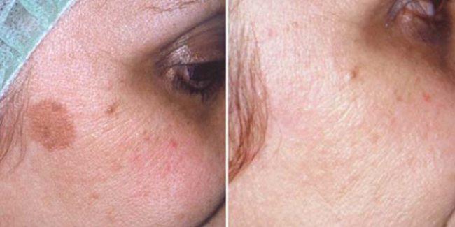 Как избавиться от пятен на лице, веснушек и гиперпигментации?!