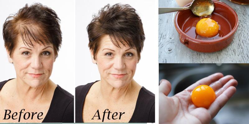 Чудодейственный домашний рецепт  для ускорения роста волос! Всего из 3 ингредиентов