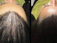 Волшебный рецепт для быстрого роста волос!