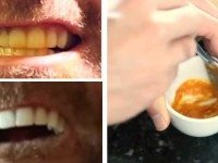 Этот мужчина показал до смешного простой трюк для отбеливания зубов. С секретным ингредиентом!