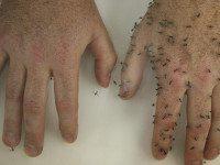 Эффективное домашнее средство от комаров: об укусах насекомых ты забудешь навсегда!