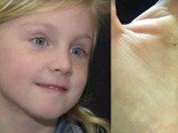 6 месяцев мама безуспешно водила дочку по врачам. Пока у нее из носа не выпало ЭТО...