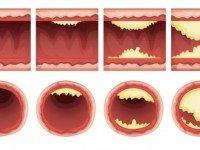 10 продуктов, которые прочистят ваши артерии и защитят от сердечного приступа