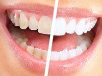 Улыбка на миллион: как отбелить зубы в домашних условиях за 3 минуты.