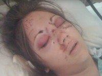 4 года назад эта девушка пережила жуткую аварию. Сейчас она хочет предупредить каждого...