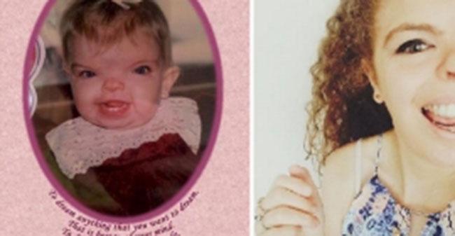 Эта девочка всю жизнь страдала от редкого заболевания. Но только взгляни, как она выглядит сейчас!