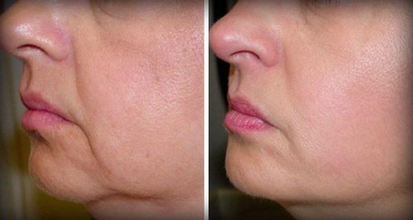 Больше никаких морщин и обвисшей кожи на лице – и всего 2 ингредиента !