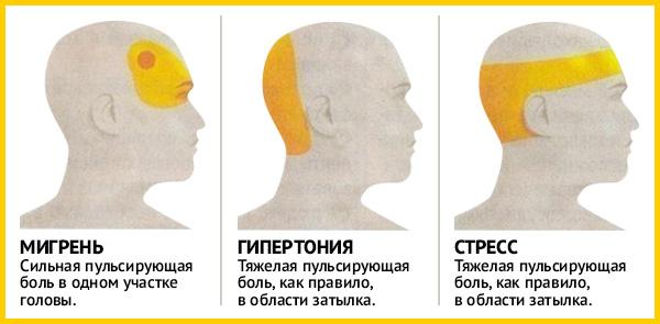 Признаки мигрени, гипертонии и стресса. Предупрежден – значит вооружен!