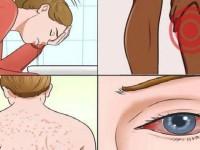 17 признаков плесневой болезни