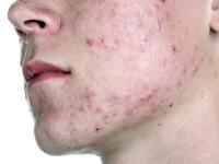 Демодекоз на лице: причины, симптомы и лечение заболевания