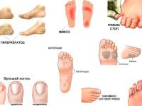Грибковое заболевание стоп: почему возникает и как предотвратить