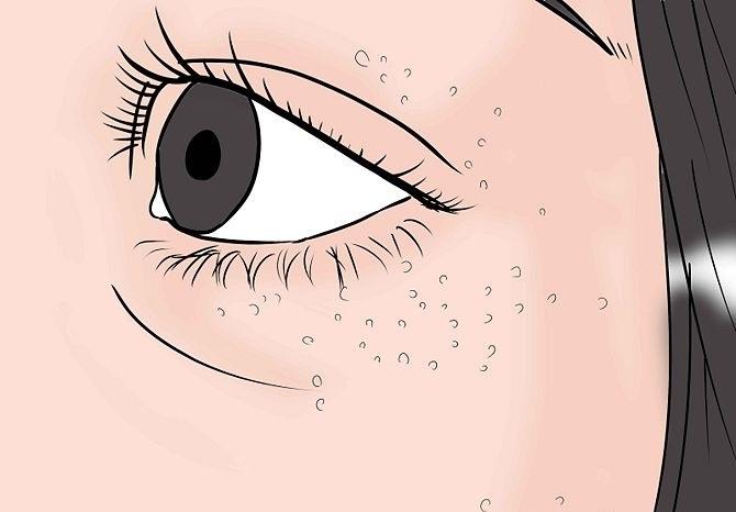 Узнайте причины появления милиумов на лице