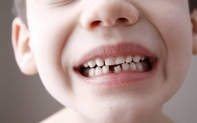 Врачи советуют родителям сохранять зубы их детей. Вот зачем…