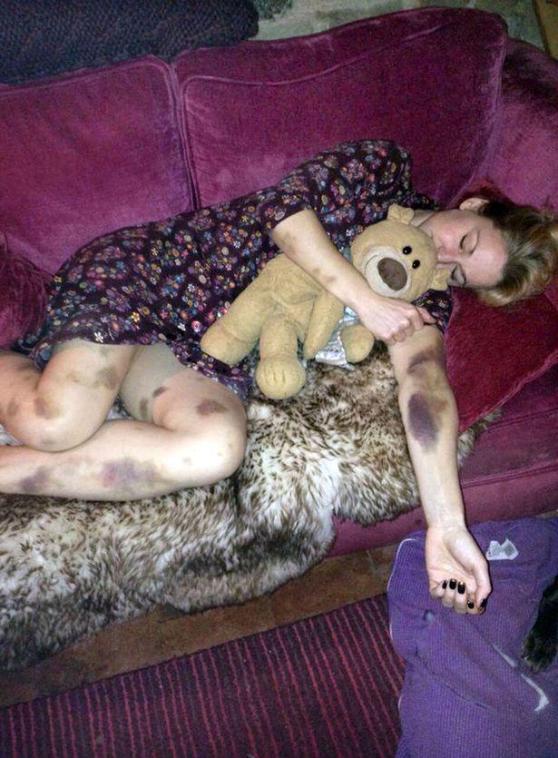 После вечеринки эта женщина проснулась вся в синяках. То, что так изменило ее тело, приводит в ужас!