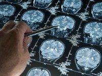 Нейробиолог рассказал, почему мы все должны периодически поститься