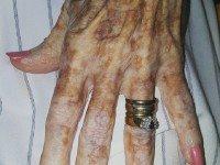 Эта старушка попросила очистить ей ногти. Но то, что сделала медсестра, поразило весь Интернет!