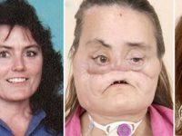 Ее жизнь превратилась в ад в мгновение ока... Только через 5 лет хирурги смогли ей помочь.