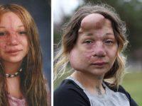 С детства она страдала от смертельно опасной болезни. Но посмотри, как она выглядит сейчас