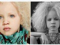 8-Летняя Девочка-Альбинос Покорила Мир Моды Своей Внешностью