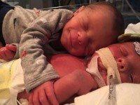 Новорожденный малыш грелся в объятиях брата. Но вскоре после этого врачи уже ничем не могли ему помочь.
