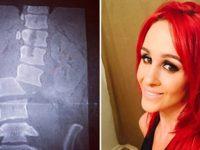 Врачи сказали, она не сможет ходить. Как выглядит девушка через 5 лет после того, как ее на полной скорости выкинули из машины