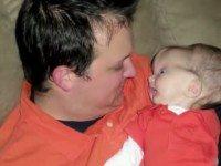 Малыш родился с огромной опухшей головой. Но через полтора года врачи глазам не верят, глядя на него
