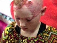 11-летняя девочка была скальпирована на глазах у матери.