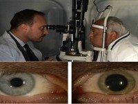 90-летний мужчина сказал, что это средство из 4 ингредиентов улучшило его зрение. Доктор, которые сделал открытие, был поражен результатами!