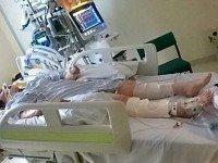 Когда врачи решили отключить девушку от аппаратов, она пошевелила пальцами. Настоящее чудо!