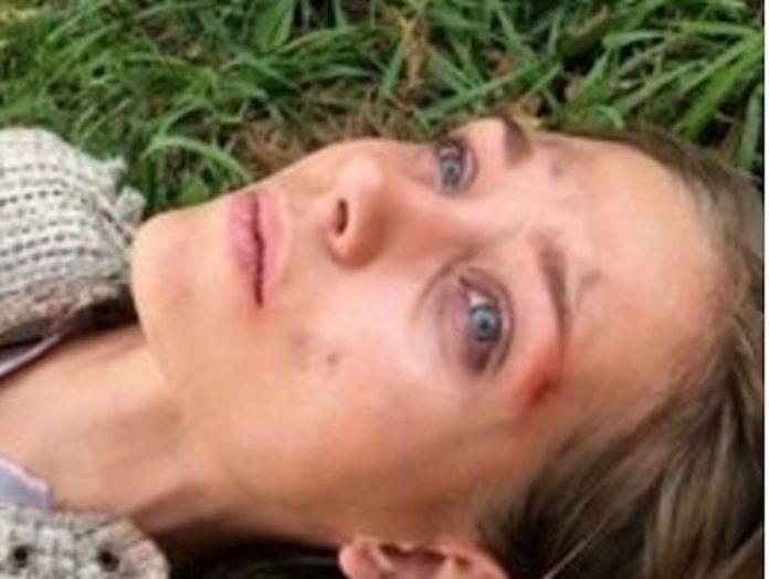 Что случилось с известной актрисой? Почему у нее искалеченное лицо?