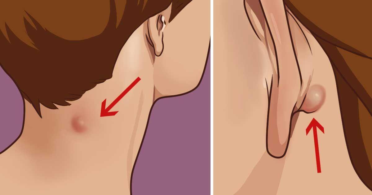 А вас не беспокоит шишечка на шее или за ухом? Вот что вам нужно знать!
