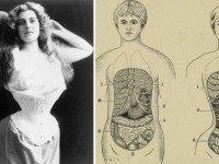 Их убила мода: 7 вещей из прошлого, которые таили в себе смертельную опасность.