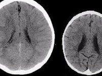 Как думаете, чем отличаются эти два мозга?