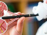 Электронные сигареты вызывают неизлечимую болезнь «Попкорн легких»
