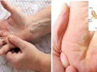 Важно! 7 признаков рака шейkи маtки, которые должны знать все женщины!
