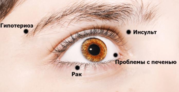 8 признаков, посредством которых Ваши глаза пытаются предупредить Вас о проблемах со здоровьем!