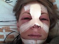 Российская певица отсудила 2,2 миллиона у изуродовавшего ее пластического хирурга