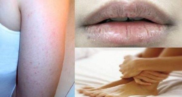 У вас сухая кожа? Выпадают волосы? Узнайте, каких витаминов Вам не хватает